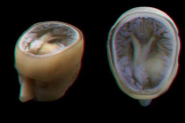 ارتباط مغز بزرگ با افزایش احتمال ابتلا به تومور مغزی