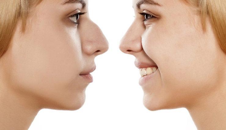عوارض عمل بینی یا رینوپلاستی چیست؟